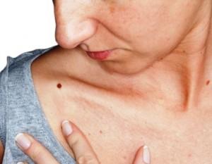 checking-your-skin-for-melanoma