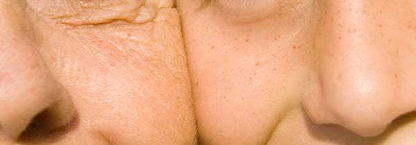 La pelle rivela l'età