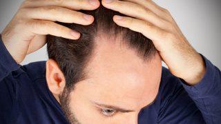 caduta capelli uomo
