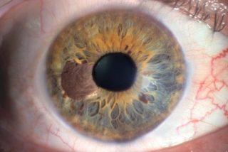 melanoma iride