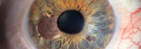 Melanoma dell'occhio… il cellulare è innocente