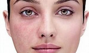 Nascondiamo i difetti della pelle…