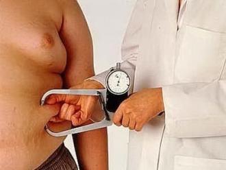 obesita_psoriasi