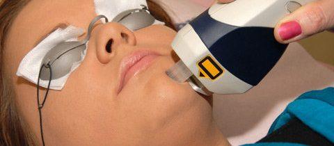 Il Laser che cura l'acne