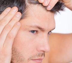 PRP HT: La nuova tecnica contro l'alopecia