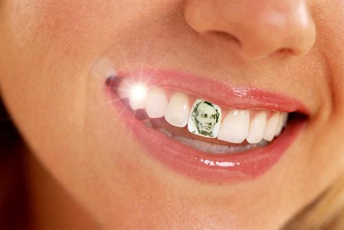 tatuaggio-dentale