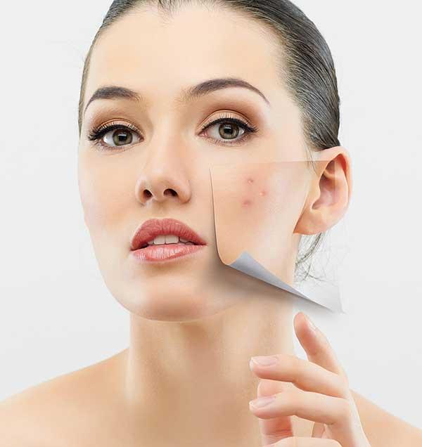 acne-mito