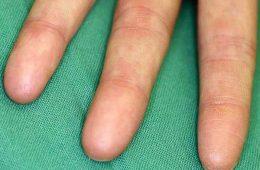 Adermatoglifia: nascere senza impronte digitali
