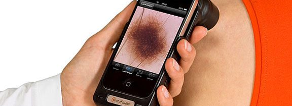 DermoScreen: l'app per iPhone che scopre il melanoma!